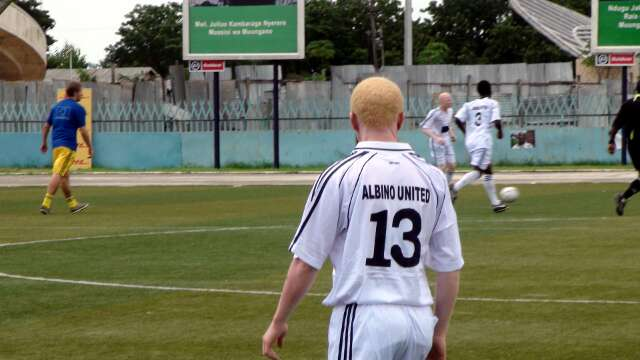 Albino United play the game diplomatically